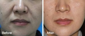 FaceTite San Francisco: Face & Neck Skin Tightening