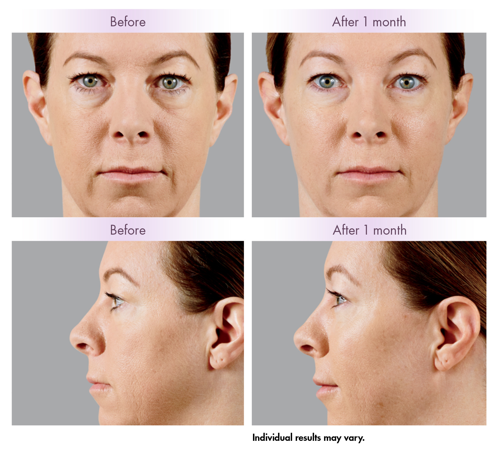 <strong>Voluma</strong> Latest And Most Advanced Facial Filler